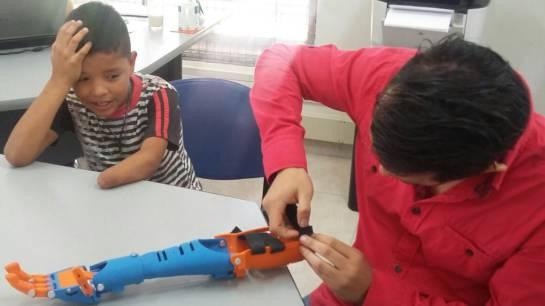 Se conoció en Neiva, la primera prótesis 3D creada con materiales de bajo costo