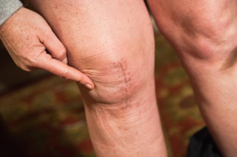 Mitos y verdades sobre las cicatrices