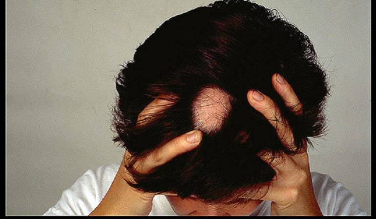 Lo Más Caracol: La Alopecia no es solo la caída del cabello