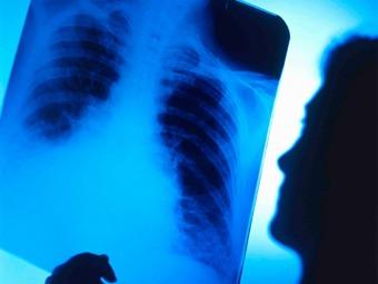 Más de la mitad de los países no están preparados para combatir el cáncer