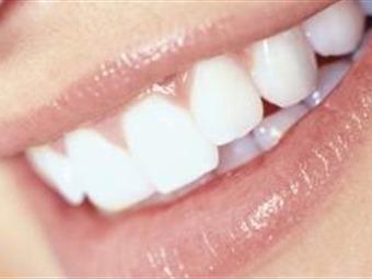 Avances médicos para tener una sonrisa deslumbrante