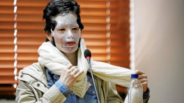 Este martes se reanudará juicio a Jonathan Vega por la agresión con ácido