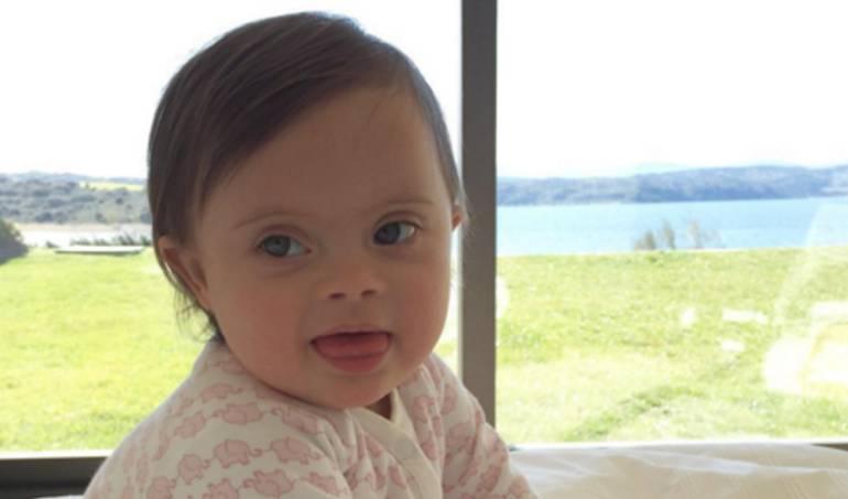 Bebé con síndrome de down que es famosa en Instagram: Pepita Mola, la tierna bebé con Síndrome de Down que conquistó Instagram