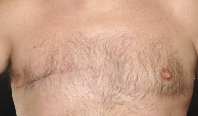 Cáncer de mama en hombres: El extraño caso de los tres hombres de una misma familia que sufrieron cáncer de mama