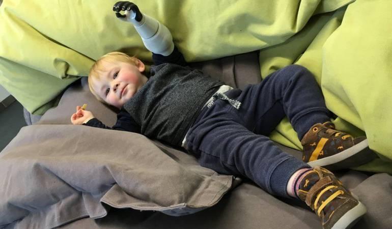 Sol, que tiene dos años, sufrió una amputación de su brazo izquierdo a los diez días de vida.