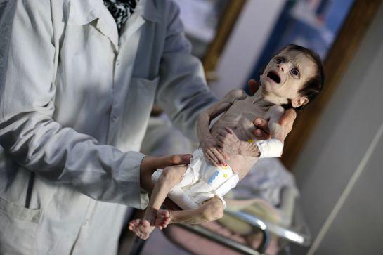 La niña de dos años sufría de un caso severo de desnutrición.