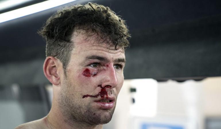 Cavendish Tirreno-Adriático abandono: Cavendish abandona la Tirreno-Adriático por una fractura de costilla