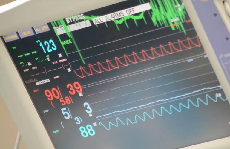 Infartos: 60.000 personas mueren al año por enfermedades del corazón en Colombia