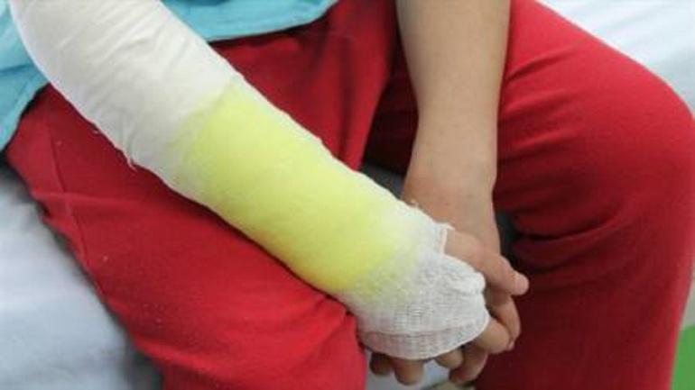 Quemados menores de edad Villavicencio: Avanza recuperación de niña quemada con aceite caliente por su padre