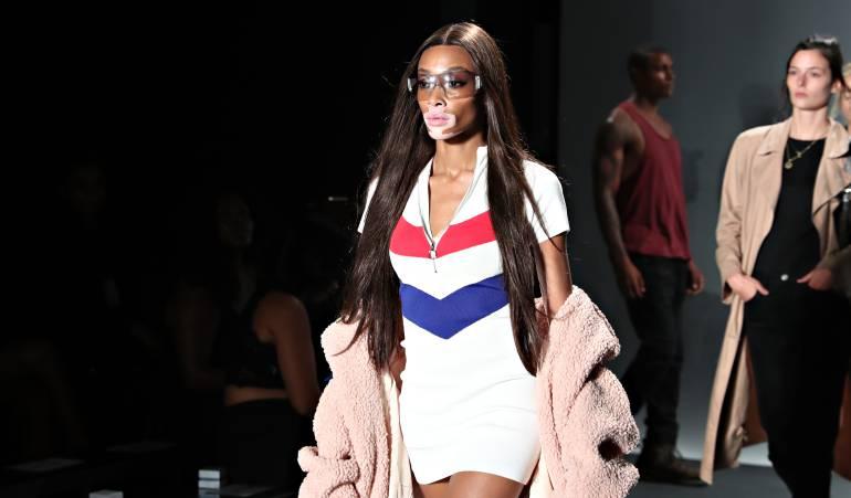 Modelo Victoria's Secret: Primera mujer con Vitiligo que modela para Victoria's Secret