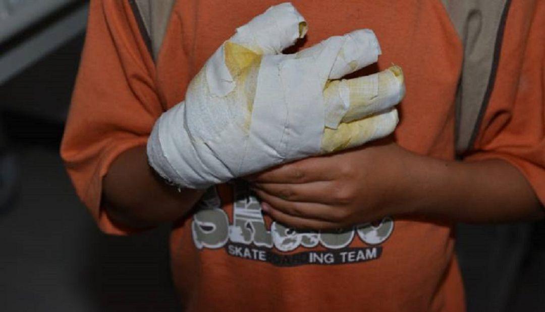 Quemados Pólvora: 2 quemados con pólvora en Quindío, sin empezar diciembre