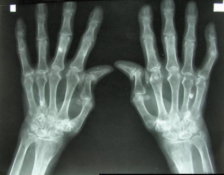 artritis reumatoide período 1
