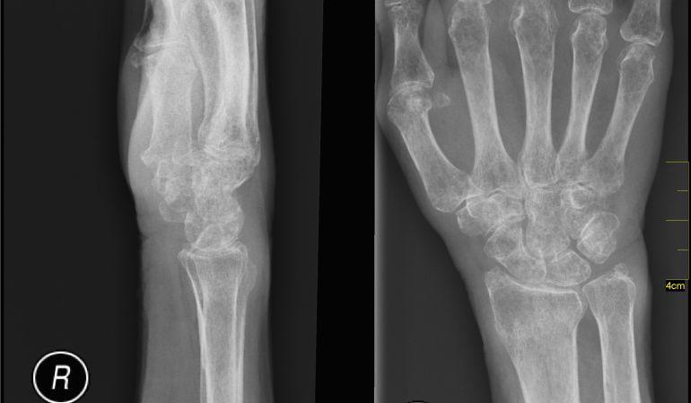 Columna en osteoporosis la la como tratar