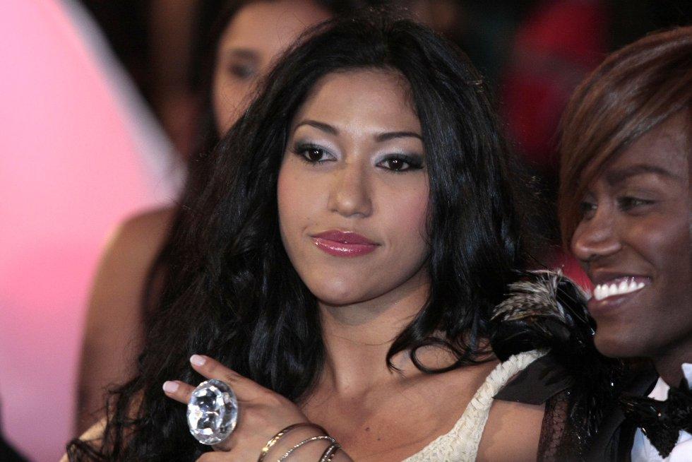 La cantante de Regaeton colombiana Farina, confesó que tras un episodio de epilepsia que sufrió en su infancia le afectó notablemente su mandíbula.