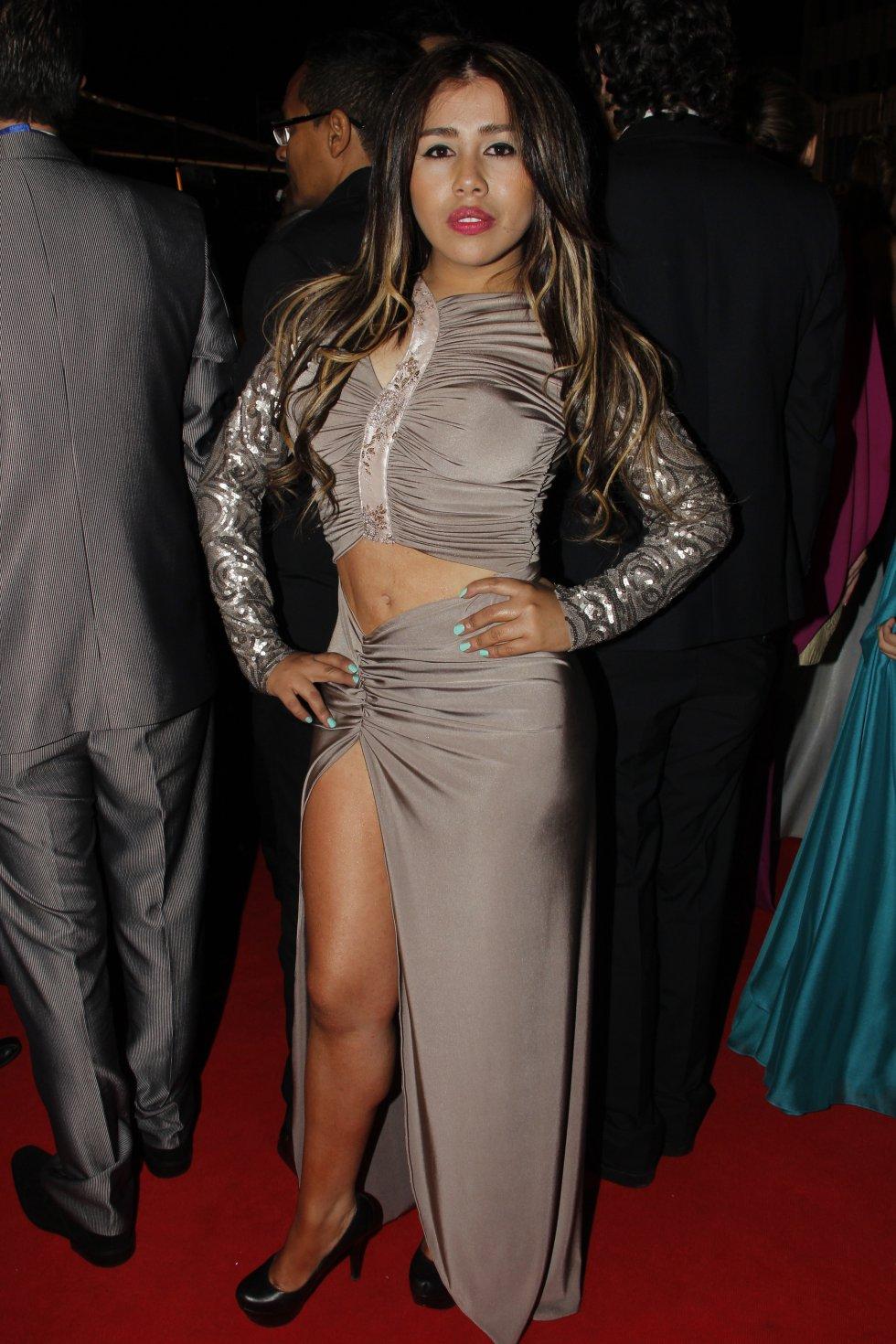 Yina Calderón. La ex Protagonista de Novela se realizó 7 procedimientos estéticos: una bichectomía, que reduce los pómulos; una operación de mentón; reducción de abdomen; adelgazamiento de brazos; diseño de sonrisa; implante de pelo.