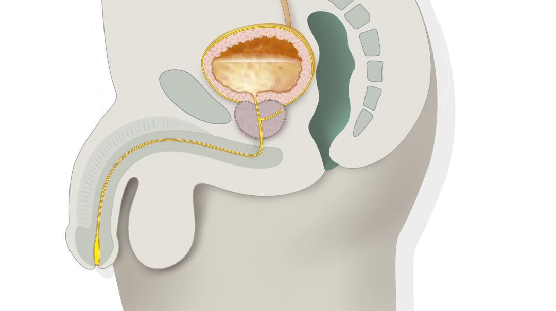 ciclismo y cirugía de próstata
