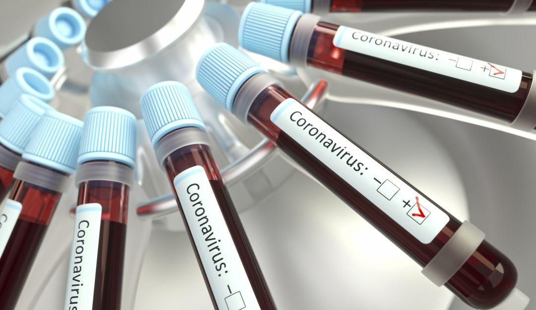 Vacuna coronavirus: Coronavirus: Colombia negocia posible vacuna con Oxford y Pfizer