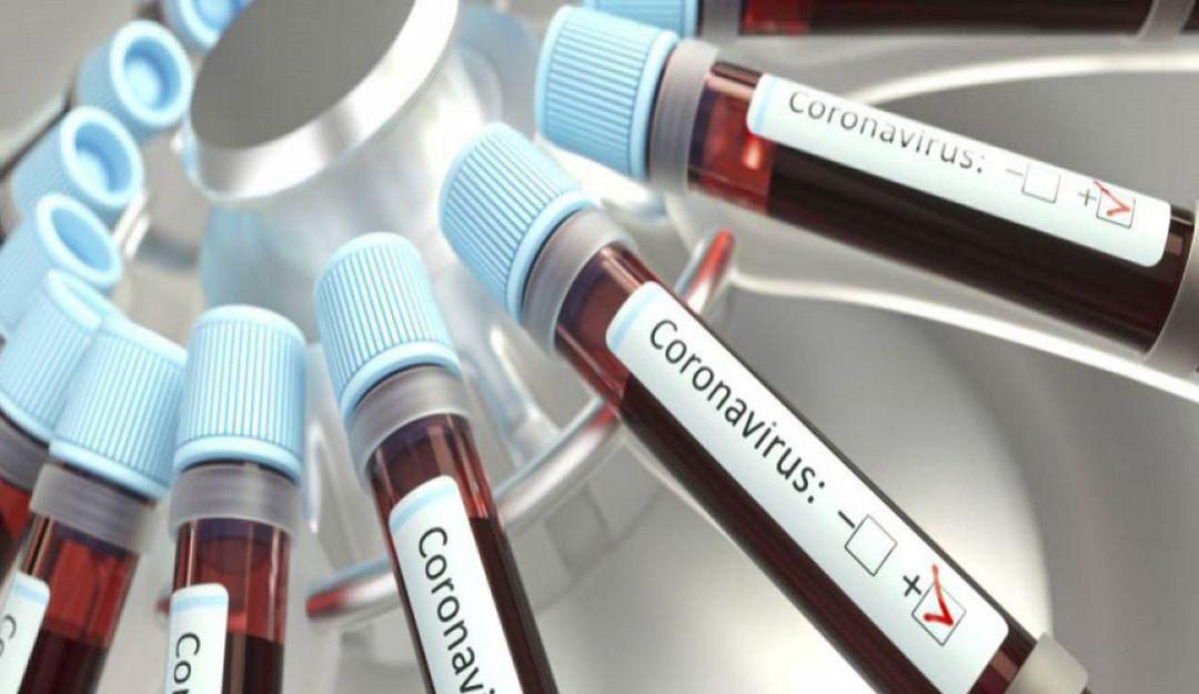 Coronavirus en Barranquilla: Atlántico reportó el 50% de los muertos por COVID-19 en el país