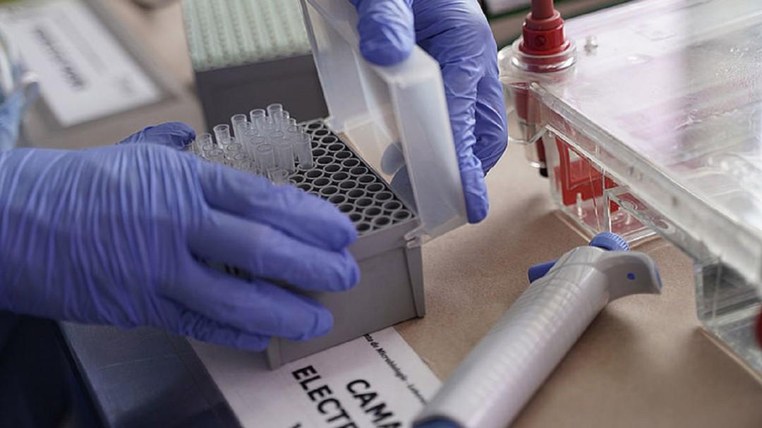En máximo tres semanas iniciarían estudios con vacuna COVID en Colombia